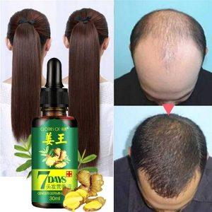 CABELO Essência Crescimento do cabelo líquido Crescimento do Cabelo Rápido Tratamento Natural da Perda de Cabelo Gengibre crescimento do cabelo líquido de 20 ml R$35,00 FRETE GRATIS  SITE aqui www.DUGEZZU.com.br boas compras