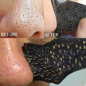 ESPINHA 10pcs cravo remoção de acne adesivos fortes nariz cravo cravo limpeza limpador FRETE GRATIS